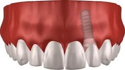 Einzelimplantat: Gebiss mit Implantat im Querschnitt
