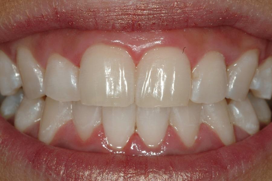 Zahnaufhellung und Bleeching: Nahaufnahme von Zähnen nach der Behandlung 2