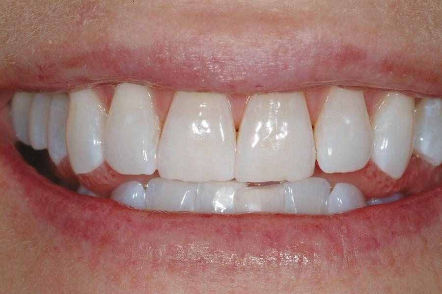 Zahnaufhellung und Bleeching: Nahaufnahme von Zähnen nach der Behandlung