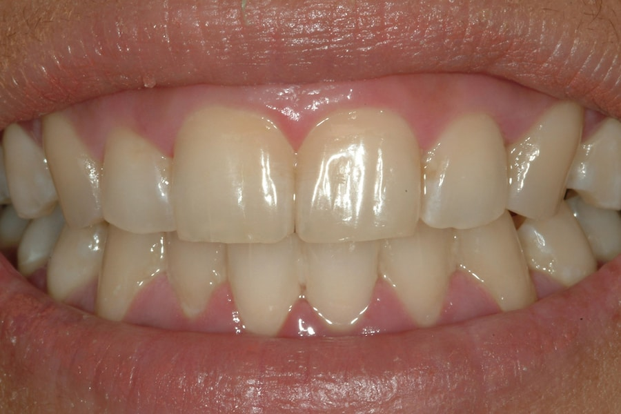 Zahnaufhellung und Bleeching: Nahaufnahme von Zähnen vor der Behandlung 2