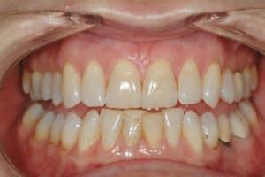 Zahnaufhellung und Bleeching: Nahaufnahme von Zähnen vor der Behandlung