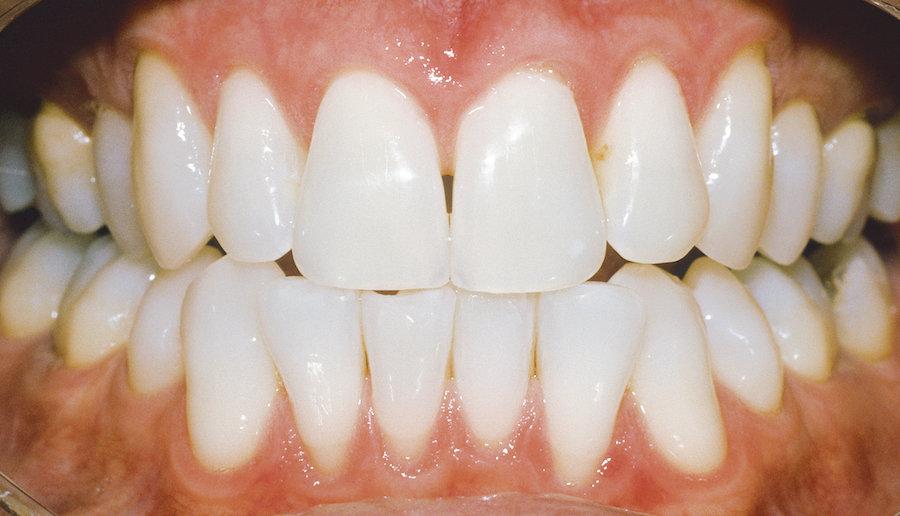 Zahnaufhellung und Bleeching: Nahaufnahme von Zähnen nach der Behandlung 4
