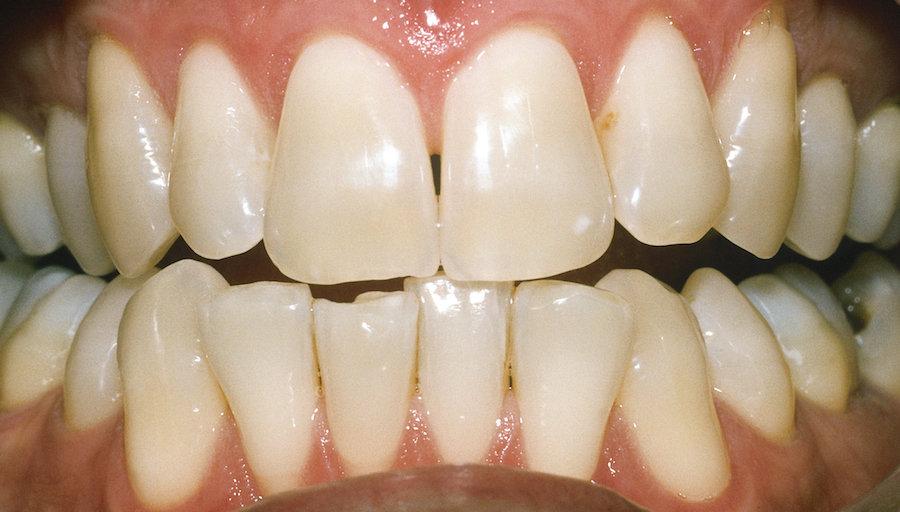 Zahnaufhellung und Bleeching: Nahaufnahme von Zähnen vor der Behandlung 4