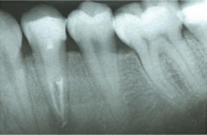 Endodontie Wurzelbehandlung: Röntgenaufnahme von Zähnen und Zahnfleisch