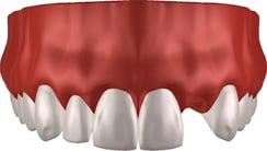 Zahnimplantat: Gebiss, Zähne und Zahnfleisch