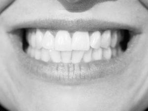 Veneers - hauchdünne Schalen für gerade und weiße Zähne